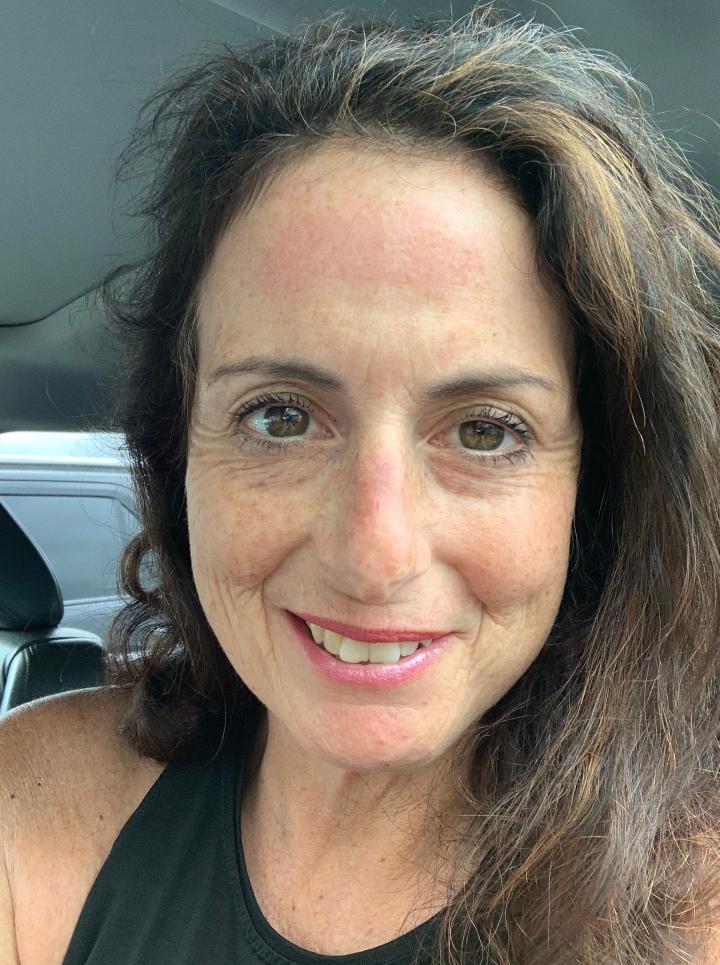 Skin Cancer Scare part2